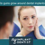 Do gums grow around dental implants?