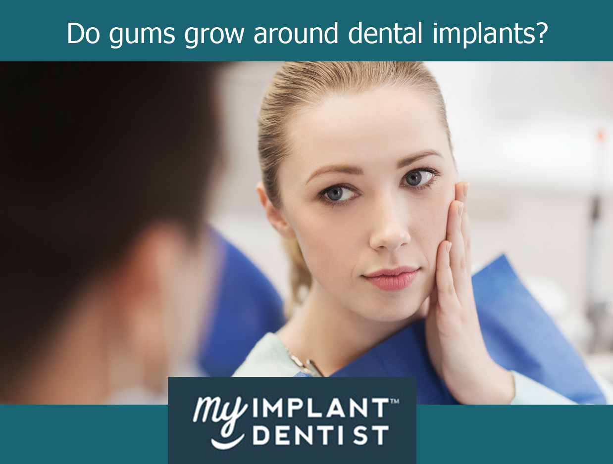 Do gums grow around dental implants?